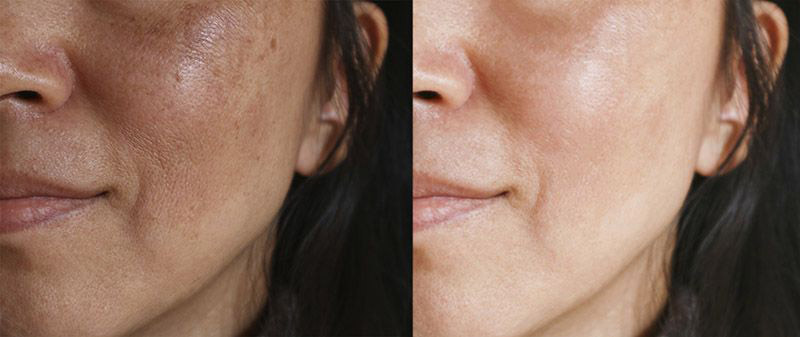 woman's face with melasma