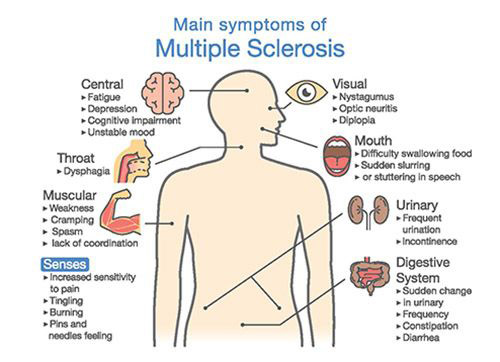 illustration of multiple sclerosis symptoms