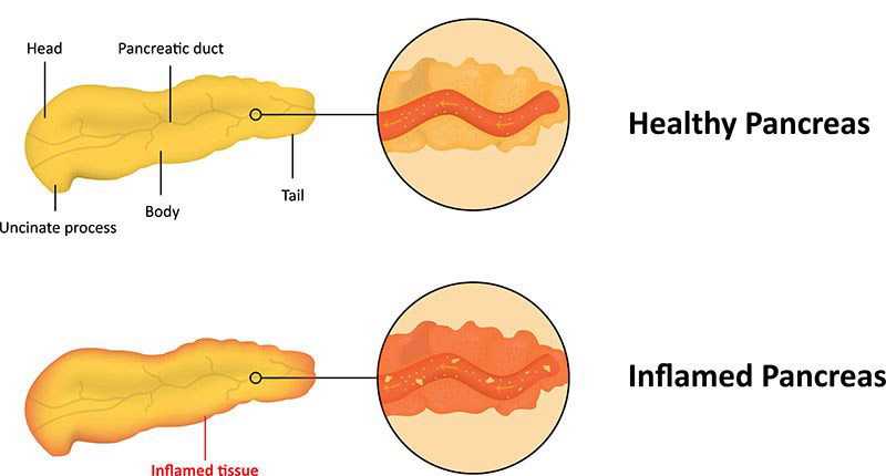 healthy & inflamed pancreas illustration