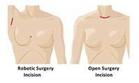 surgery procedure illustration