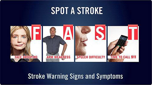 poster showing stroke signs